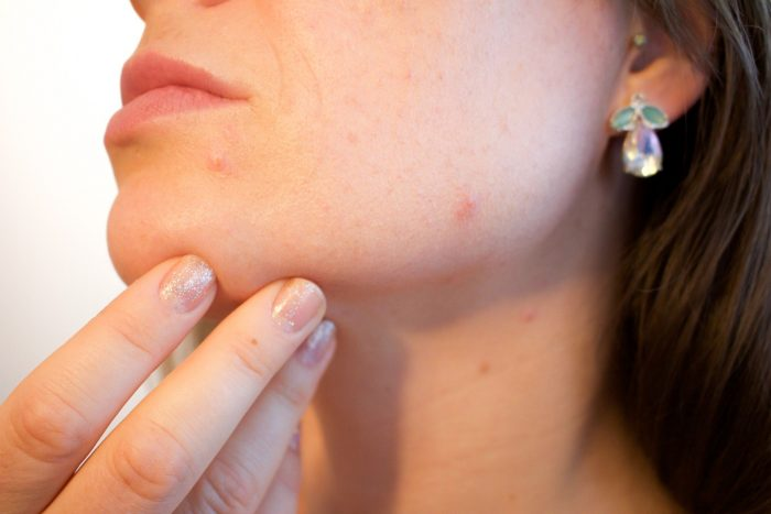 Cystic Acne - picking pimples