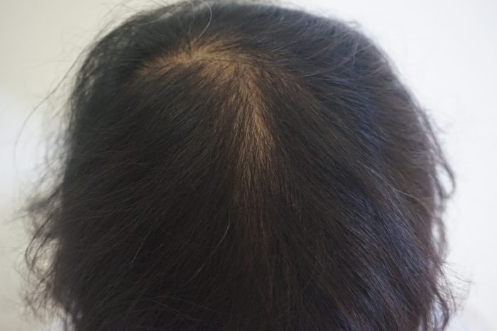 Female pattern hair loss treatments by dermatologist