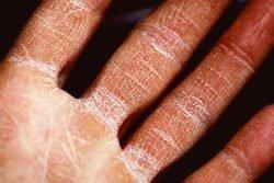 Singapore Dermatologist Eczema Treatment